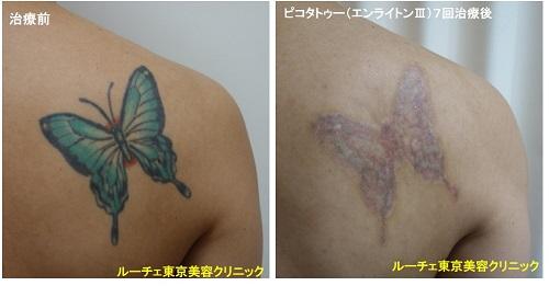 タトゥー除去ピコレーザー、7回、背中、黒、緑、黄色、赤