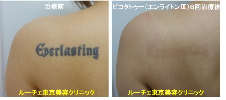 タトゥー除去ピコレーザー、8回、背中、黒