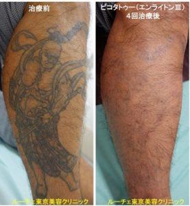 タトゥー除去ピコレーザー、4回、足、黒