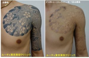 タトゥー除去ピコレーザー、7回、腕~胸、黒