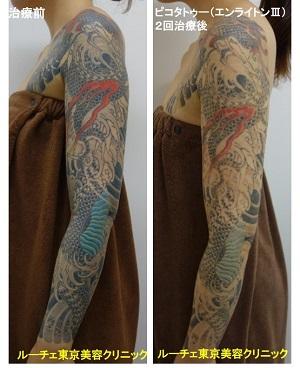 タトゥー除去ピコレーザー、2回、腕、黒、赤、黄色、水色