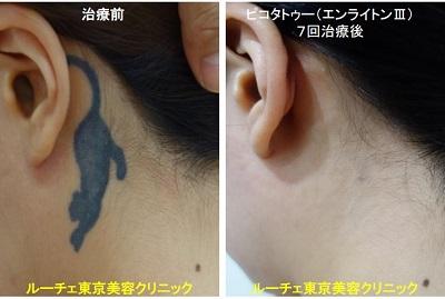 タトゥー除去ピコレーザー、7回、項、黒
