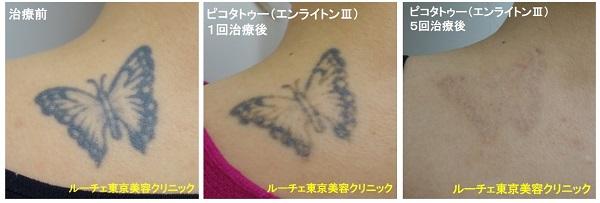 タトゥー除去ピコレーザー、5回、背中、黒