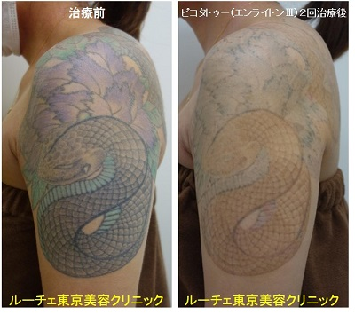 タトゥー除去ピコレーザー、2回、腕、黒、紫、緑、水色