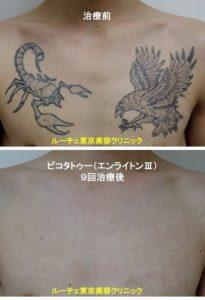 タトゥー除去ピコレーザー、9回、胸、黒