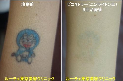 タトゥー除去ピコレーザー、腕、5回、黒、青、赤