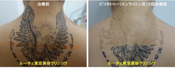 タトゥー除去ピコレーザー、2回、背中、黒