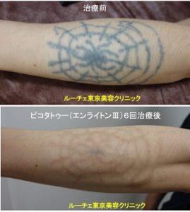 タトゥー除去ピコレーザー、6回、腕、黒