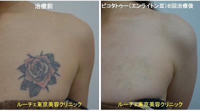 タトゥー除去ピコレーザー、8回、胸、黒、赤、黄色、緑