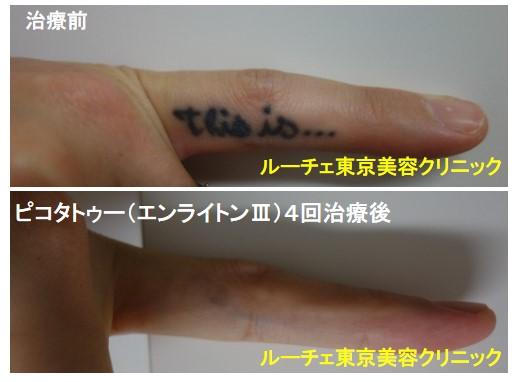 タトゥー除去ピコレーザー、4回、指、黒