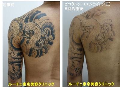 タトゥー除去ピコレーザー、6回、背中~腕、黒