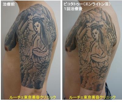 タトゥー除去ピコレーザー、1回、腕~胸、黒