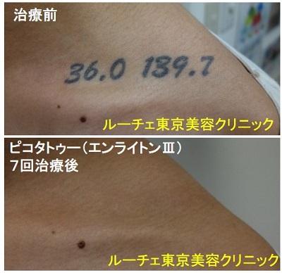 タトゥー除去ピコレーザー、7回、肩、黒