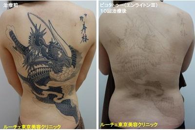 タトゥー除去ピコレーザー、10回、背中、黒