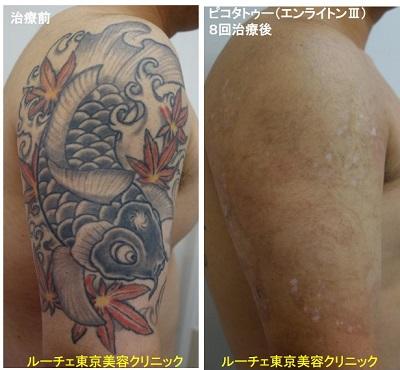 タトゥー除去ピコレーザー、8回、腕、黒、赤、黄色