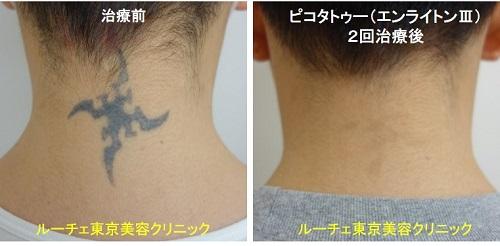 タトゥー除去ピコレーザー、2回、項、黒