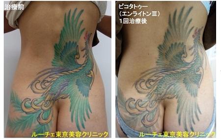 タトゥー除去ピコレーザー、1回、背中、緑、黄色、赤、黒
