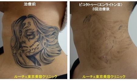 タトゥー除去ピコレーザー、3回、首、黒