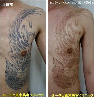 タトゥー除去ピコレーザー、1回、胸~腹、黒