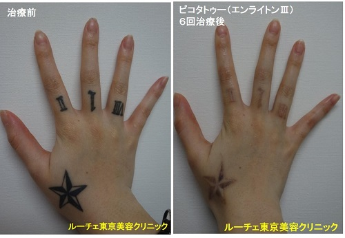 タトゥー除去ピコレーザー、6回、手、黒