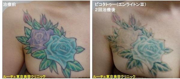タトゥー除去ピコレーザー、胸、2回、黒、緑、黄緑、青、水色、紫、赤