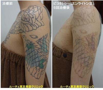 タトゥー除去ピコレーザー、5回、腕、黒、青、水色、緑