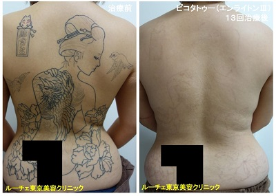 タトゥー除去ピコレーザー、13回、背中、黒