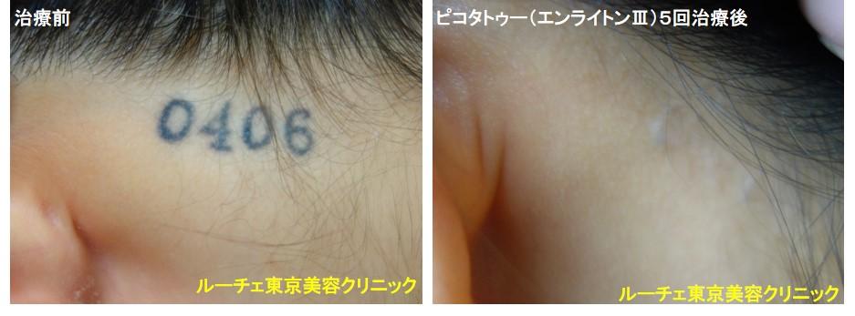 タトゥー除去ピコレーザー、項、5回、黒