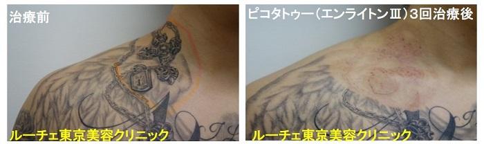 タトゥー除去ピコレーザー、首、3回、黒