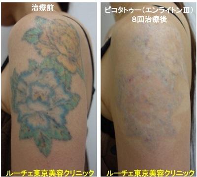 タトゥー除去ピコレーザー、腕、8回、黒、黄色、緑、水色、赤