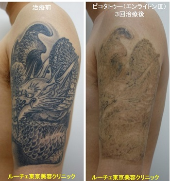 タトゥー除去ピコレーザー、腕、3回、黒
