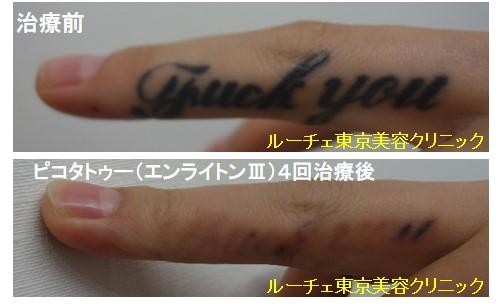 タトゥー除去ピコレーザー、指、4回、黒