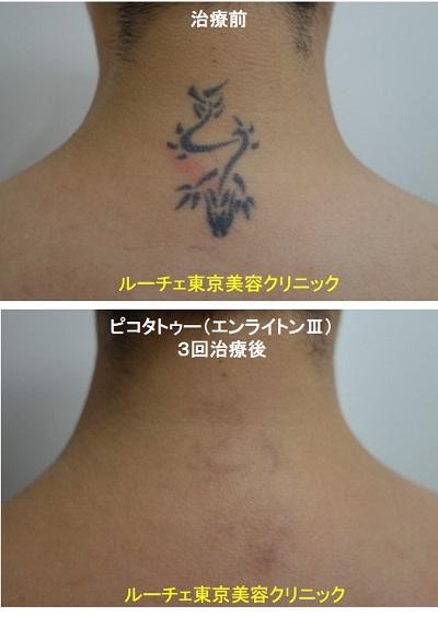 タトゥー除去ピコレーザー、項、3回、黒