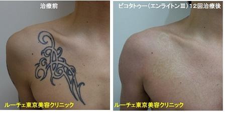 タトゥー除去ピコレーザー、胸、12回、黒