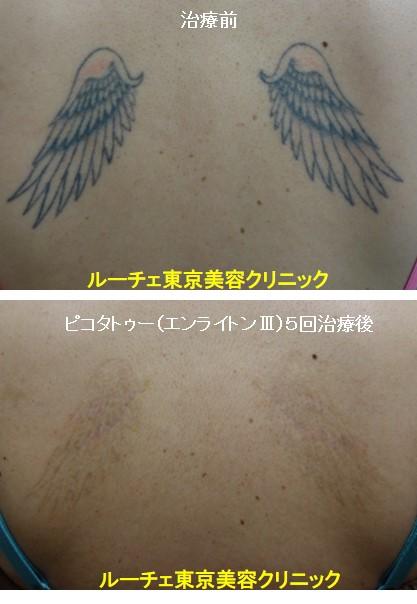 タトゥー除去ピコレーザー、背中、5回、黒、オレンジ