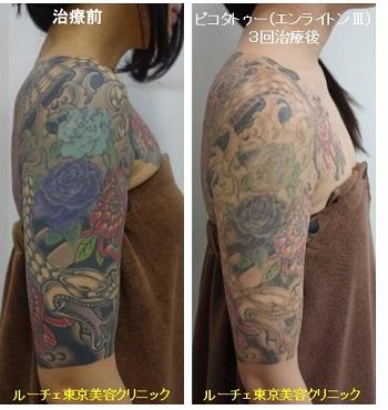 タトゥー除去ピコレーザー、腕、3回、黒、赤、紫、水色、緑、黄緑