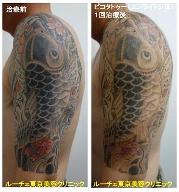 タトゥー除去ピコレーザー、腕、8回、黒、赤、黄色