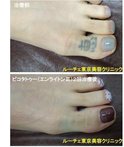 タトゥー除去ピコレーザー、足、2回、黒