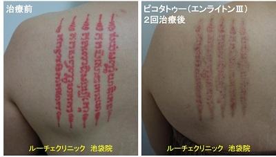 タトゥー除去ピコレーザー、背中、2回、赤