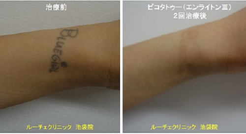タトゥー除去ピコレーザー、手首、2回、黒