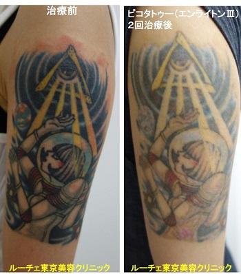 タトゥー除去ピコレーザー、腕、2回、黒、青、水色、黄色、赤