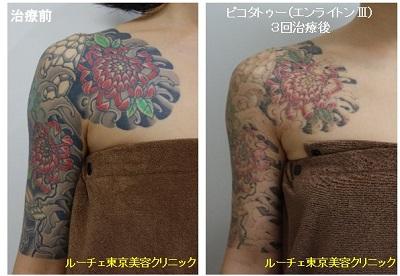 タトゥー除去ピコレーザー、腕、3回、黒、赤、緑、黄緑、黄色