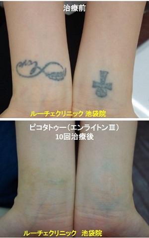 タトゥー除去ピコレーザー、手首、10回、黒