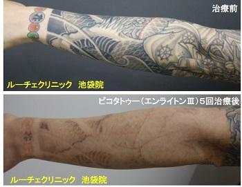 タトゥー除去ピコレーザー、腕、5回、黒、オレンジ、緑