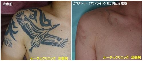 タトゥー除去ピコレーザー、胸、8回、黒