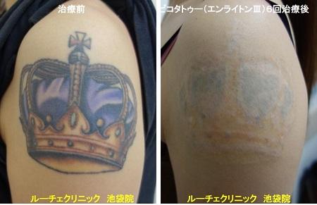 タトゥー除去ピコレーザー、腕、6回、黒、紫、赤、オレンジ