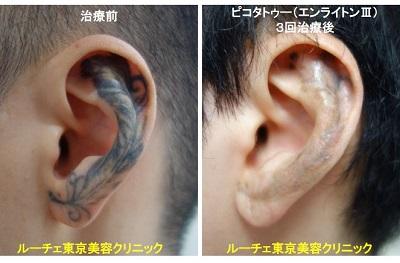 タトゥー除去ピコレーザー、耳、3回、黒