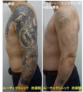 タトゥー除去ピコレーザー、腕、4回、黒