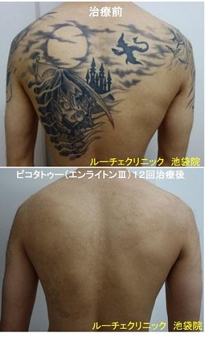 タトゥー除去ピコレーザー、背中、12回、黒、赤