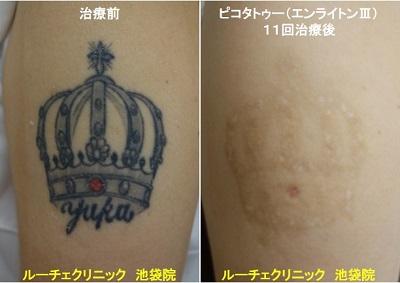 タトゥー除去ピコレーザー、腕、12回、黒,、赤
